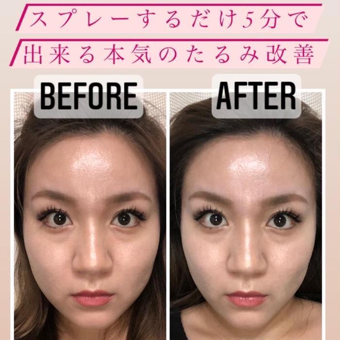 美肌•小顔専門サロンRadiant所属・南埜 莉子の掲載