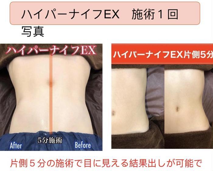 アロマクイーン所属・ハイパーナイフ痩身 小顔コルギ専門店の掲載