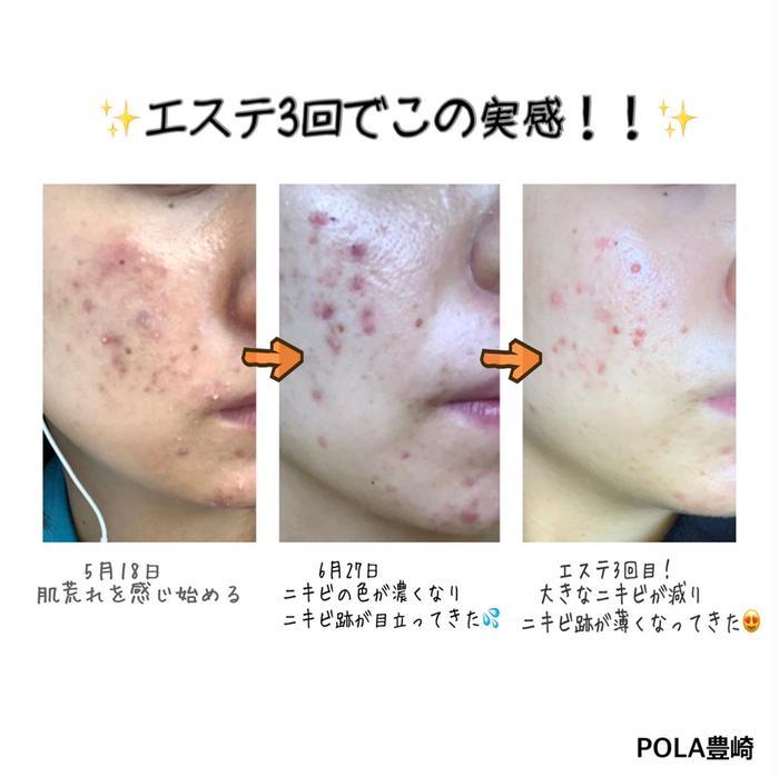 POLA豊崎店所属・POLA豊崎店 安谷屋の掲載